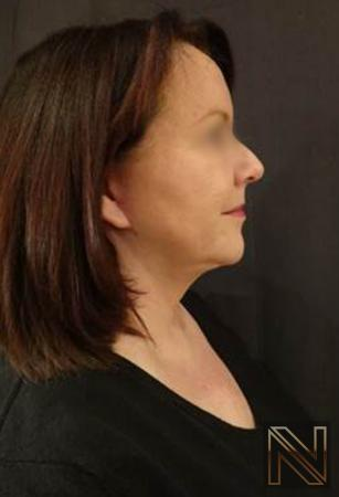 Facelift/Mini Facelift: Patient 4 - After Image
