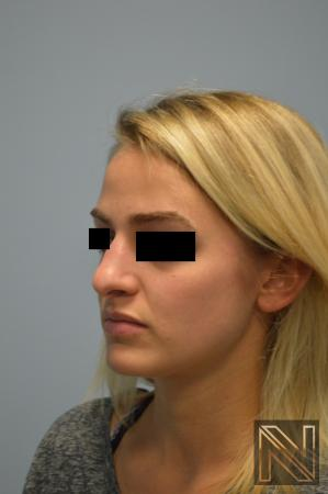 Rhinoplasty: Patient 3 - Before Image 2