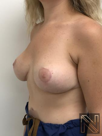 Breast Lift: Patient 10 - After Image 2