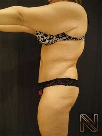 Abdominoplasty: Patient 17 - After Image 2