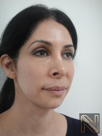Fractional Resurfacing: Patient 3 - Before and After Image 2