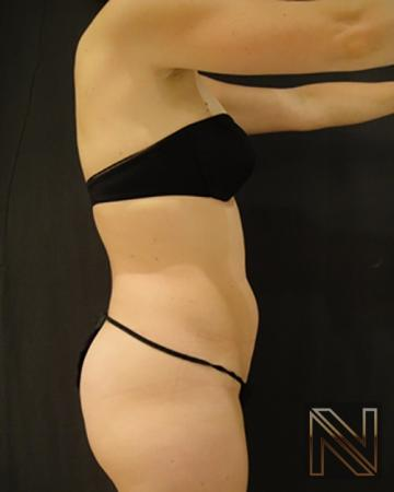 Liposuction: Patient 8 - Before and After 3