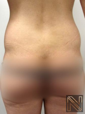 Liposuction: Patient 22 - Before Image 1