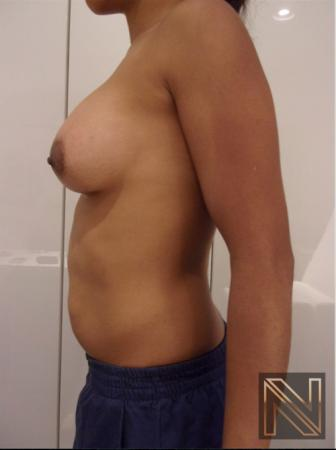 Breast Augmentation: Patient 18 - After Image 3