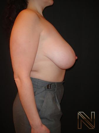 Breast Reduction: Patient 7 - Before and After Image 5
