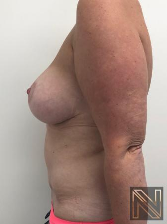 Abdominoplasty: Patient 28 - After Image 2