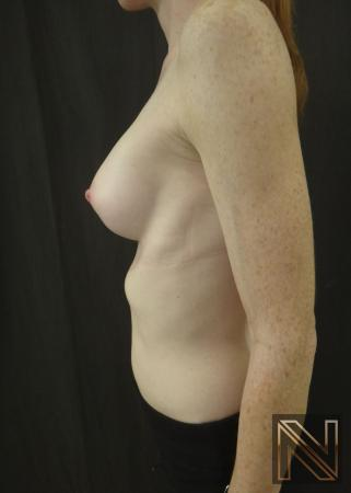 Breast Augmentation: Patient 17 - After Image 5