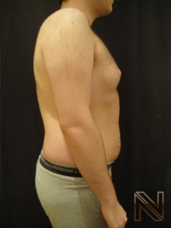 Gynecomastia: Patient 5 - Before and After Image 4