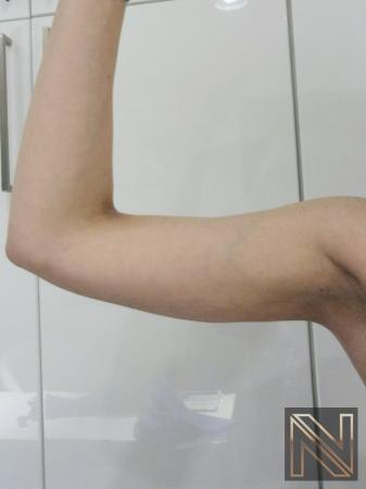 Liposuction: Patient 26 - After Image 1