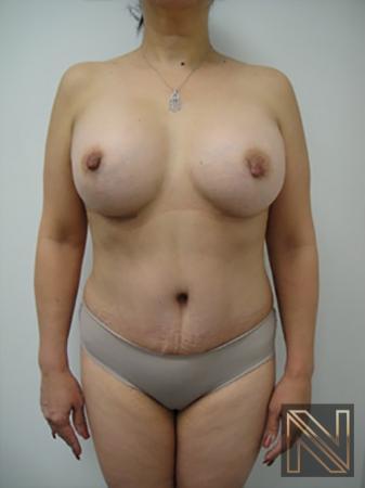 Abdominoplasty: Patient 20 - After 1