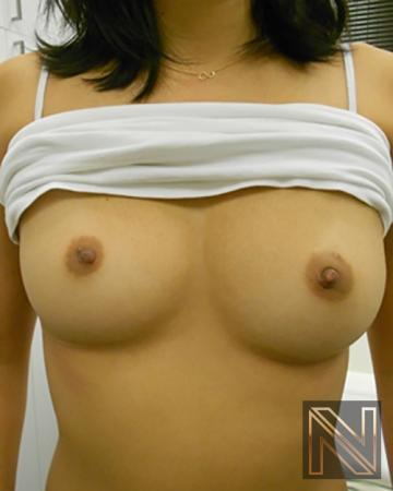 Inverted Nipple Surgery: Patient 1 - After Image 1