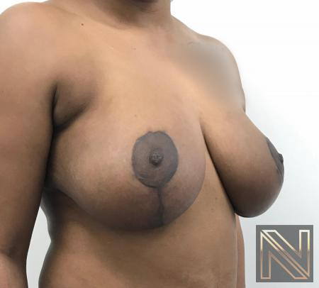Breast Lift: Patient 14 - After Image 2