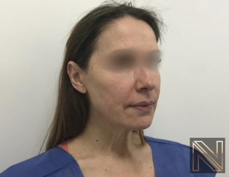 Facelift/Mini Facelift: Patient 5 - Before Image