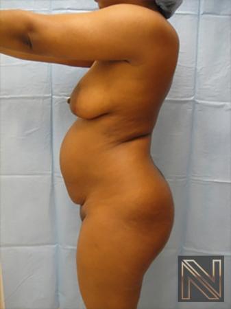 Abdominoplasty: Patient 7 - Before Image 2