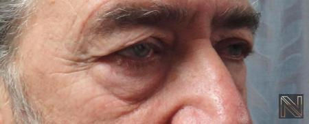 Blepharoplasty: Patient 7 - Before Image 2