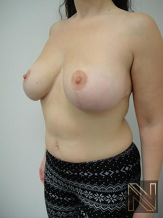Breast Reduction: Patient 7 - After Image 2