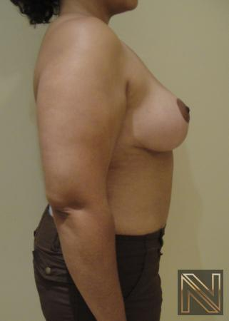 Breast Lift: Patient 6 - After Image 4
