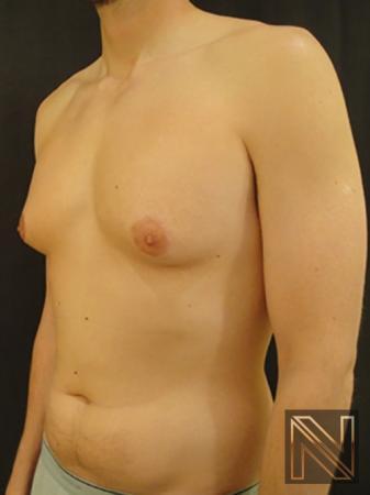 Gynecomastia: Patient 4 - Before Image 2