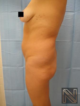 Butt Augmentation: Patient 2 - Before Image 1