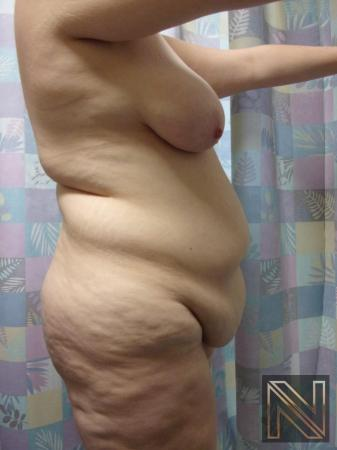 Abdominoplasty: Patient 1 - Before and After Image 3
