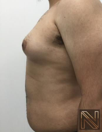 Gynecomastia: Patient 10 - Before 2