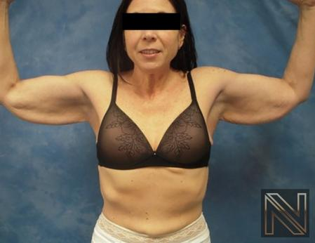 Brachioplasty: Patient 2 - Before Image