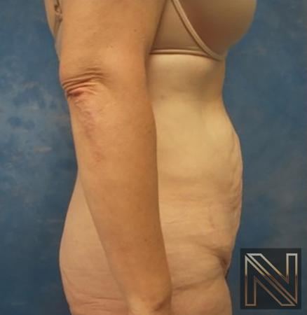 Abdominoplasty: Patient 30 - Before and After Image 2