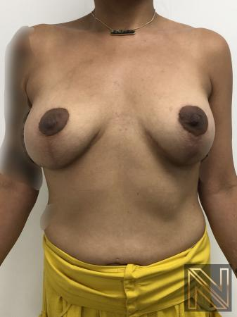 Breast Lift: Patient 1 - After Image 1