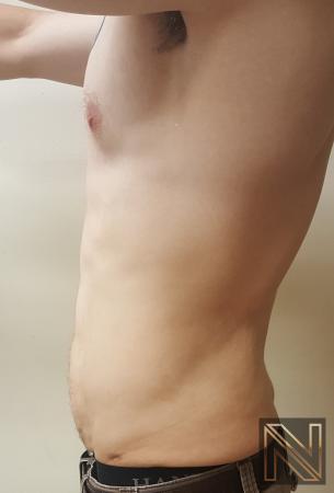 Liposuction: Patient 13 - After Image 3