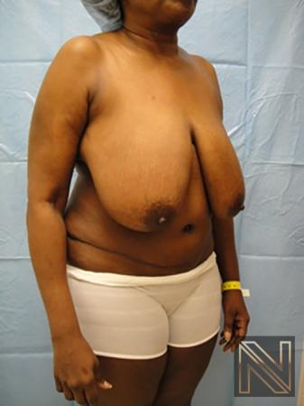 Breast Reduction: Patient 4 - Before 3