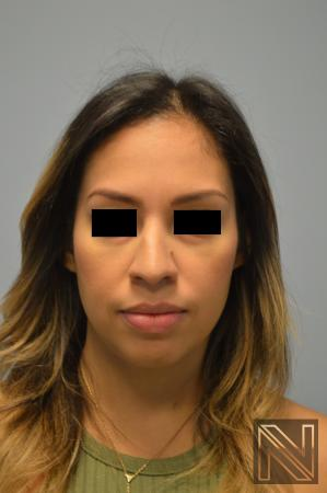Rhinoplasty: Patient 6 - Before Image
