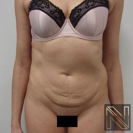 Mini Tummy Tuck: Patient 5 - Before Image 1