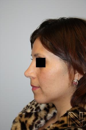 Rhinoplasty: Patient 5 - After 2