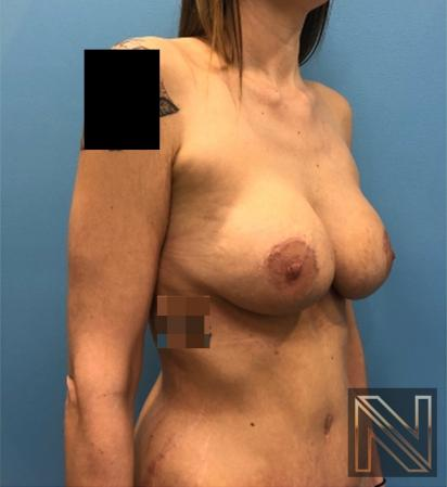 Breast Lift: Patient 18 - After Image 2