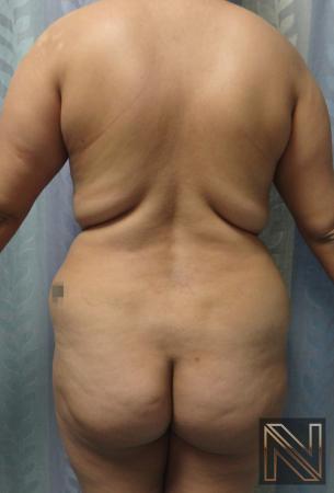Butt Augmentation: Patient 5 - Before Image
