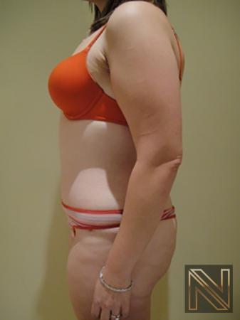 Abdominoplasty: Patient 5 - After 2