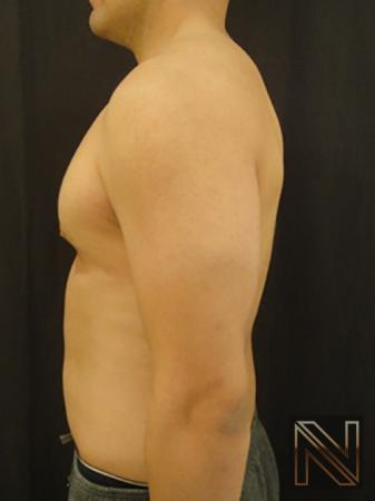 Gynecomastia: Patient 3 - After Image 4