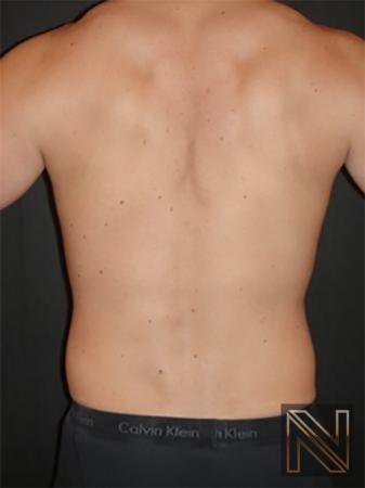 Liposuction: Patient 20 - Before Image 1