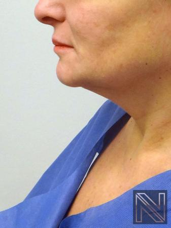 Facelift/Mini Facelift: Patient 8 - Before Image 1