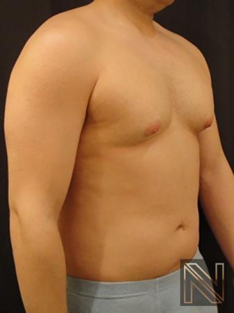 Gynecomastia: Patient 3 - Before Image 3
