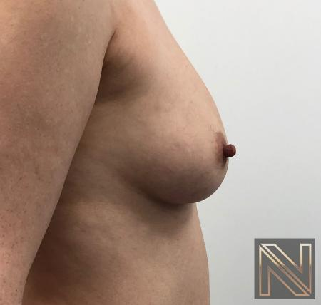 Fat Transfer - Body: Patient 2 - Before Image 3