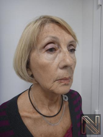 Ultherapy®: Patient 2 - After 2