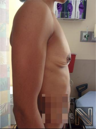 Breast Augmentation: Patient 18 - Before Image 2