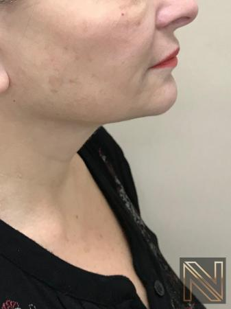Facelift/Mini Facelift: Patient 8 - After Image 2