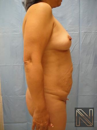 Abdominoplasty: Patient 6 - Before and After Image 3