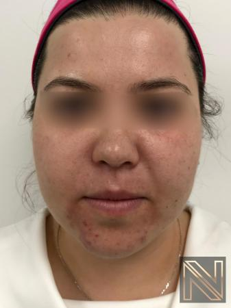 Fractional Resurfacing: Patient 5 - Before Image