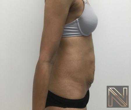 Abdominoplasty: Patient 29 - Before Image 2