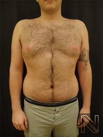 Gynecomastia: Patient 5 - Before Image 1