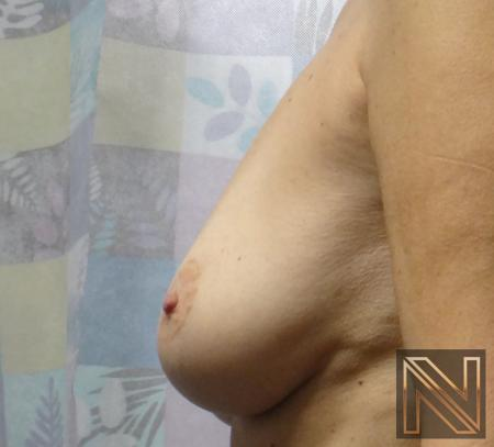 Fat Transfer - Body: Patient 1 - Before 3