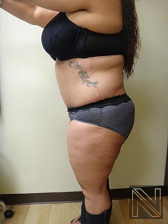 Abdominoplasty: Patient 11 - After Image 2